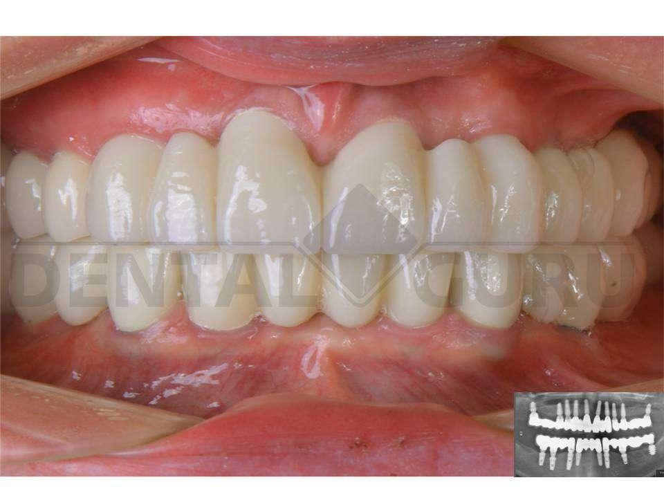 Картинки по запросу зубные эндопротезы фото