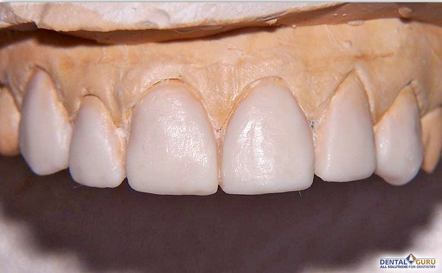 Выравнивание зубов при скученности