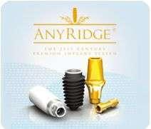 Имплант AnyRidge