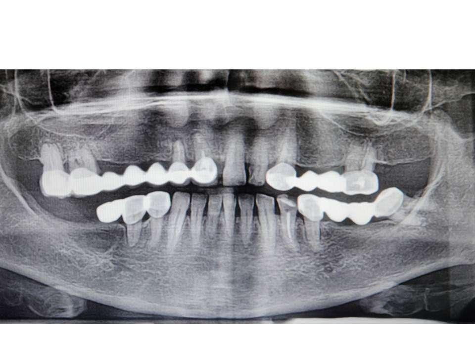 До имплантации