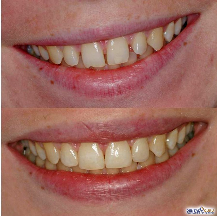 Как сделать щель между зубами