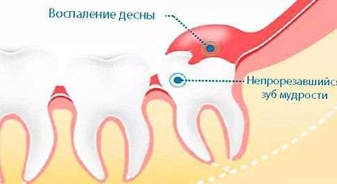 воспалительный процесс вокруг зуба мудрости