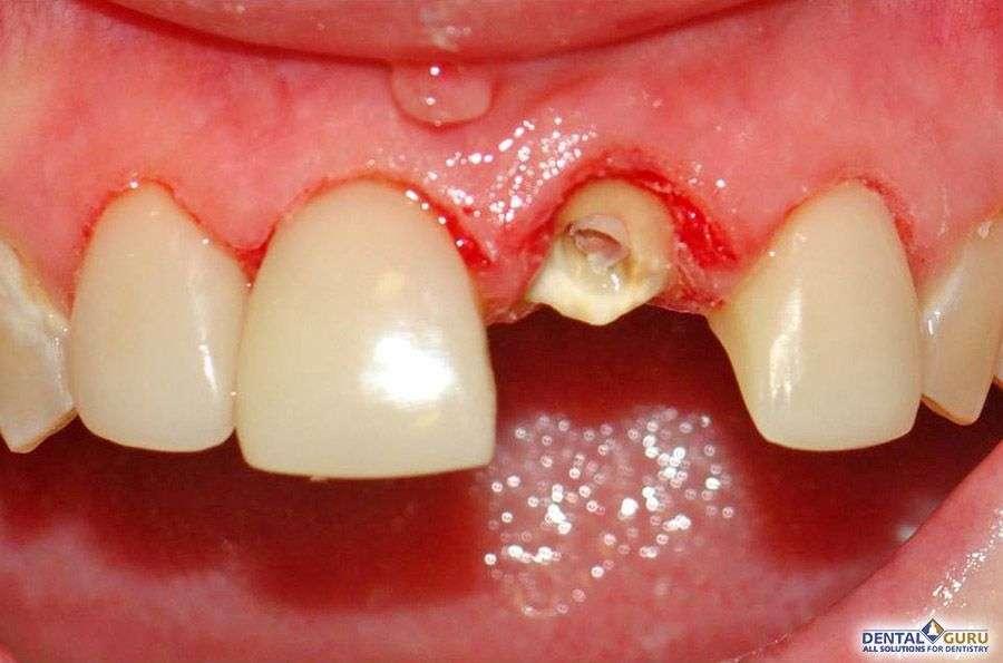 имплантация зуба 1 зуб