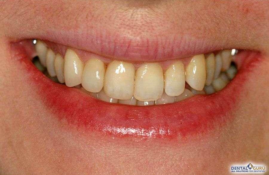 Выравнивание зубов при скученности 3