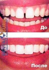 методика композитной реконструкции зубов