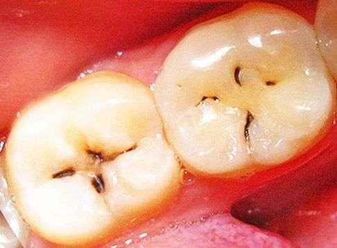 Кариес на зубах 6 и 7