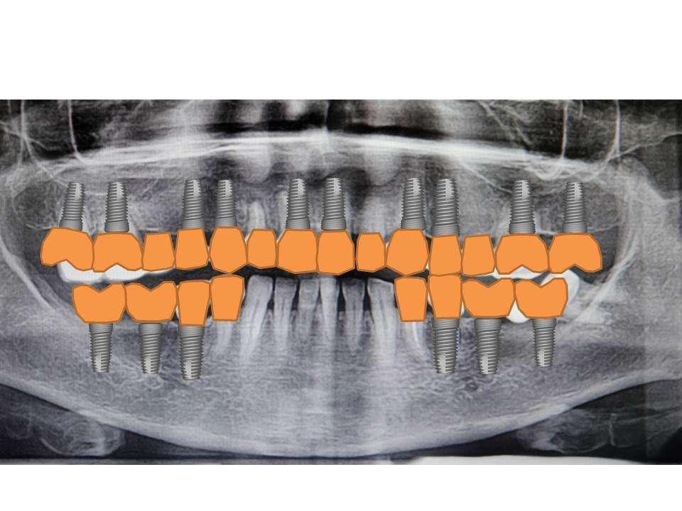до имплантации зубов 1
