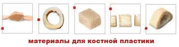 Материалы для костной пластики