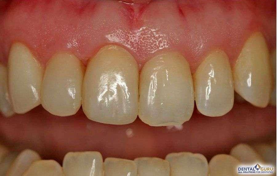 Выравнивание зубов при скученности 2