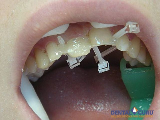 Выровнять зубы - методы выравнивания зубов