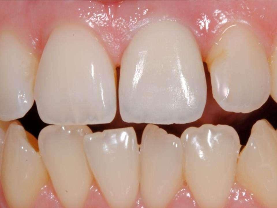 зубные импланты 2