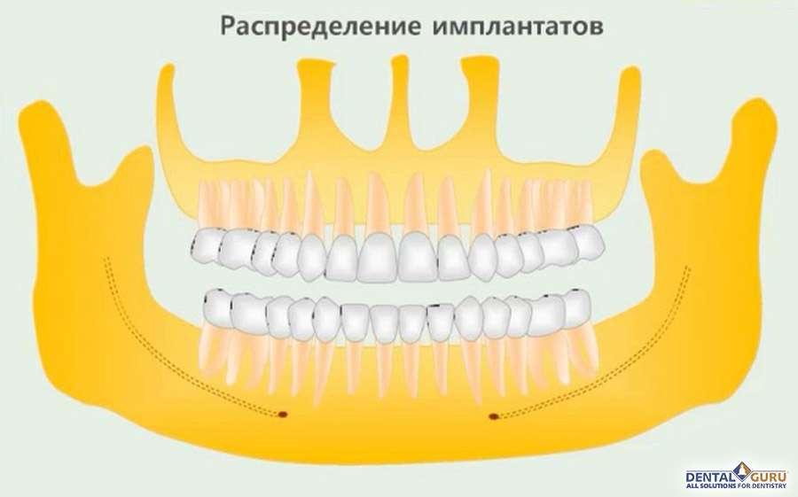 Тотальная имплантация зубов на 4-х, 8-x или 12 в Москве
