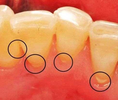 Удаление зубного камня дома