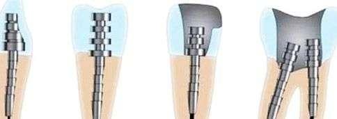 Зубной штифт: материал, установка, цена, фото до и после