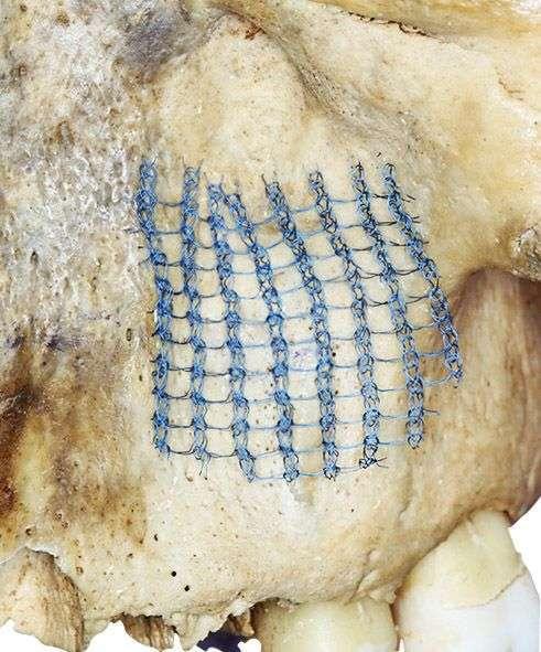титановый шелк - Закрытие окна после проведения открытого синус-лифтинга