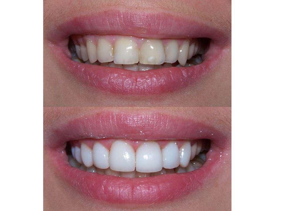 Отбеливание зубов со 100% гарантией = композитное отбеливание