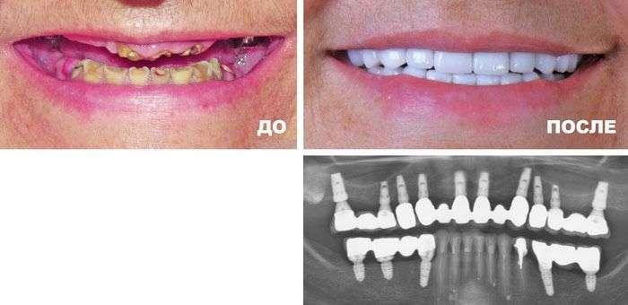 имплантация зубов до и после (пример DentalGu.ru)
