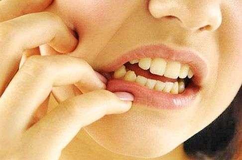 зуб мудрости болит