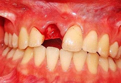 удалили зуб