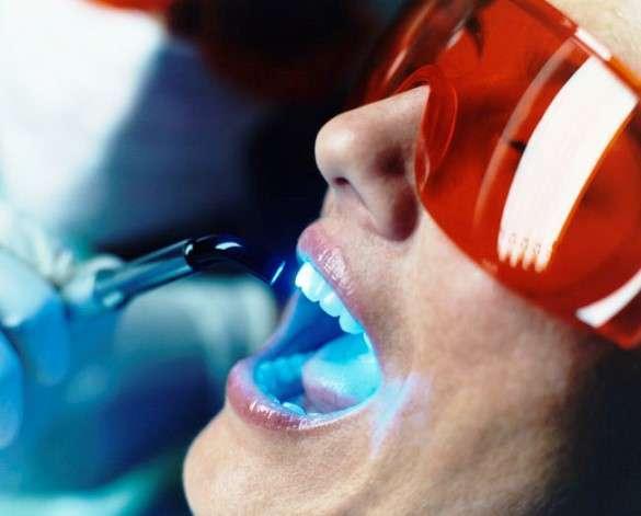 лазерное отбеливание зубов цена отзывы тула