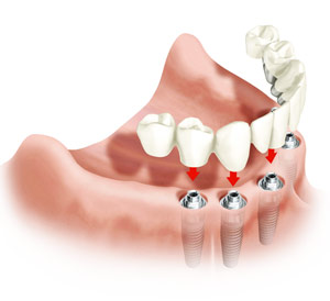 implantazia_zubov14_prew.jpg