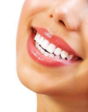 красивая улыбка благодаря современной имплантации зубов