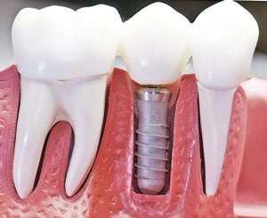 Установка имплантатов на месте разрушенных зубов