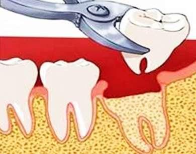 Удаление зуба мудрости разрез десны
