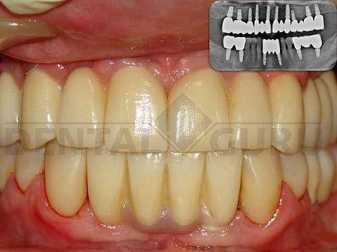 Зубные импланты калининград